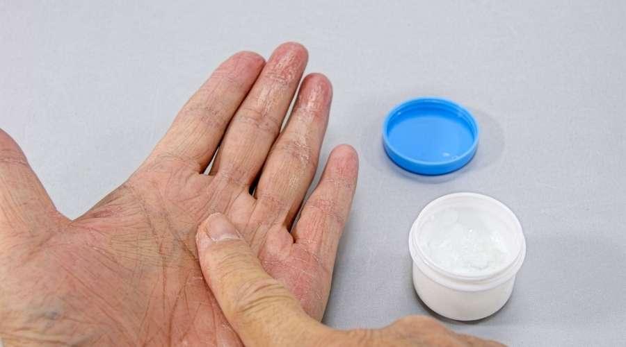 荒れた手にクリームを塗っている